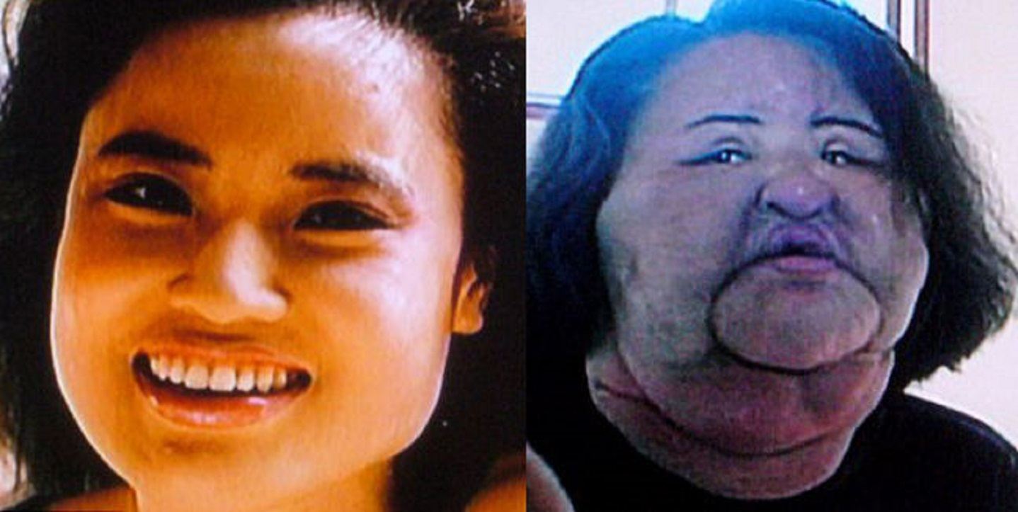 15 Of The Most Shocking Plastic Surgery Disasters