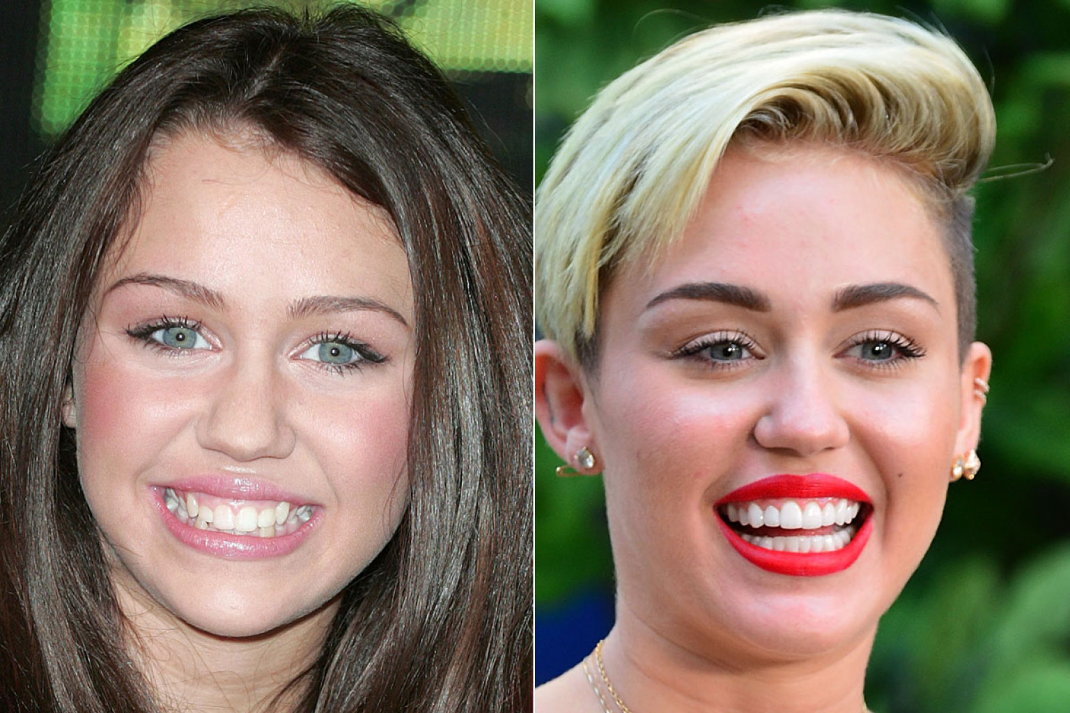 20 Hollywood Celebs You Didnt Know Have Fake Teeth