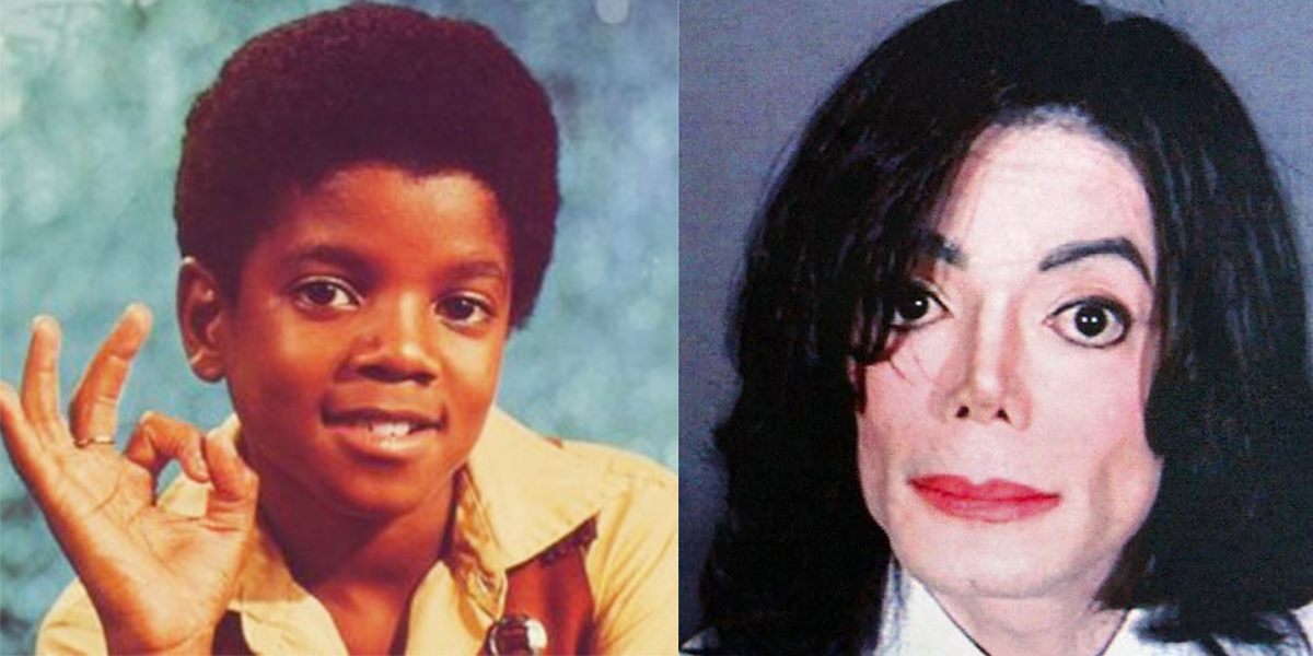 17 Celebs Who Went Under The Knife...And Got Absolutely ...